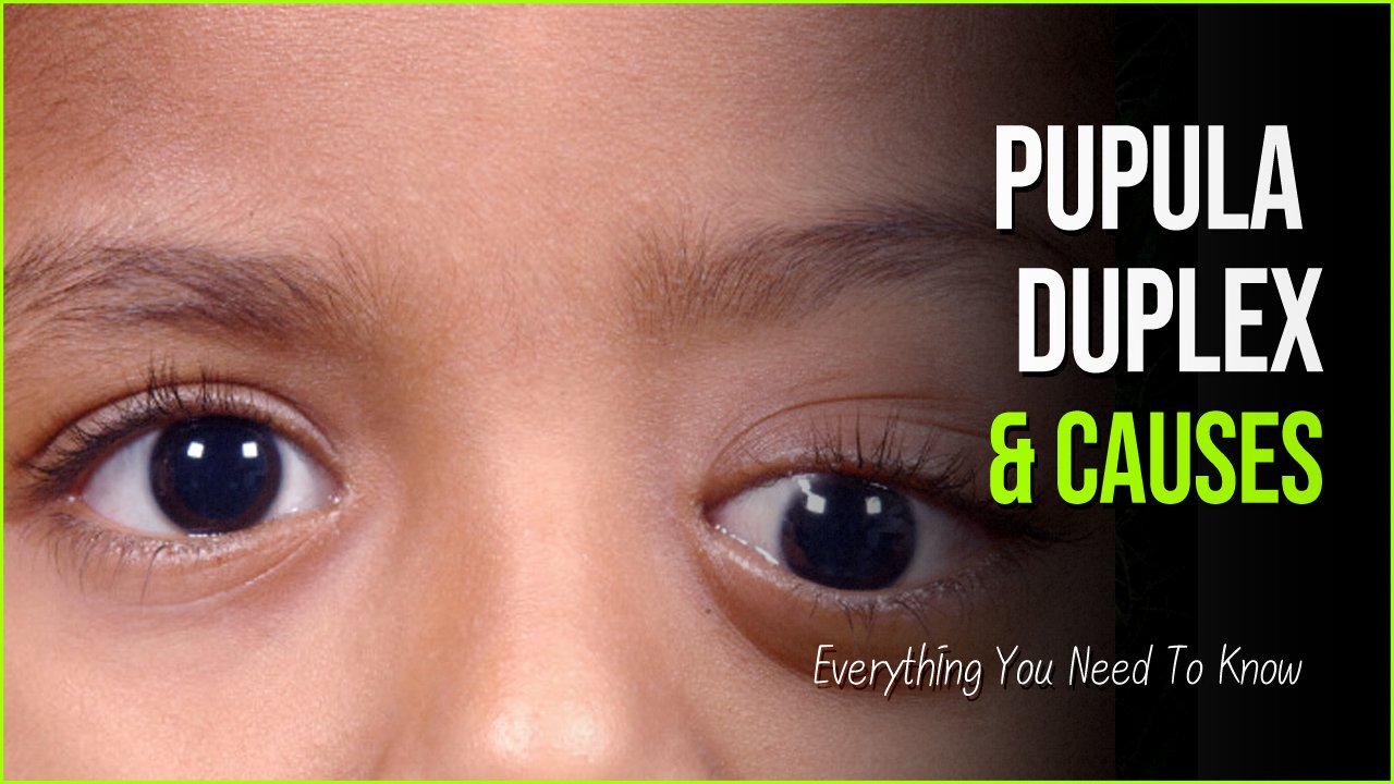 pupula duplex.jpg?resize=412,232 - Pupula Duplex And Other Eye Disorders That Internet Is Talking About
