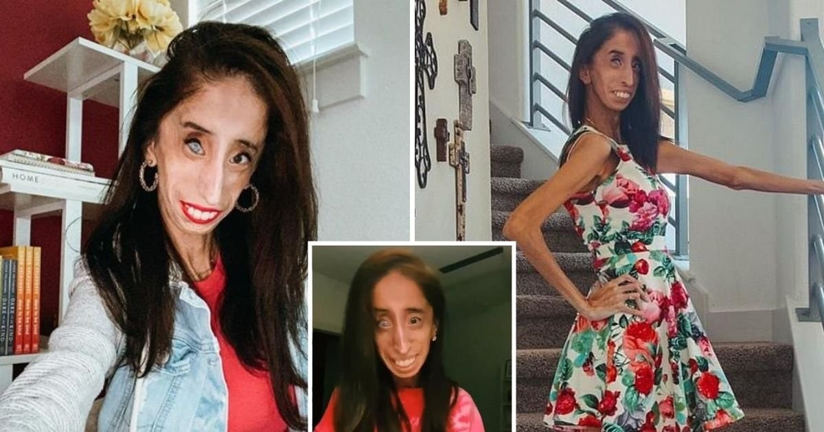 untitled design 15.jpg?resize=1200,630 - Woman With Rare Disease Begs Parents To Stop Using Her Face To Scare Their Kids