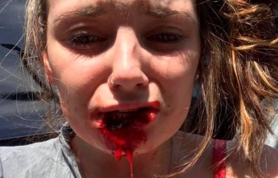 Hombre arrancó el labio de su exnovia de una mordida