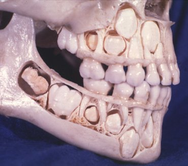 baby teeth skull photo