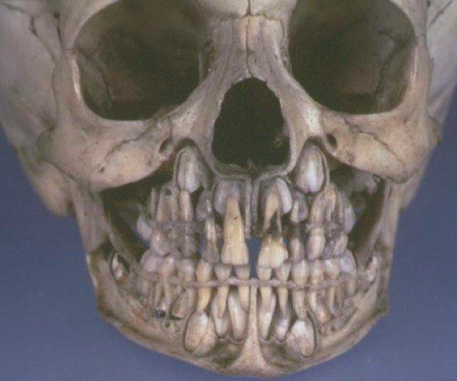 baby skull teeth