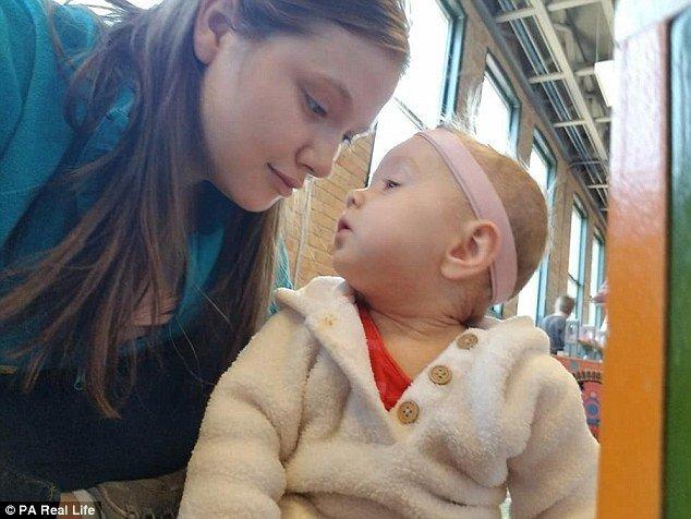 Tiene que bañar a su niña de un año con CLORO por su rara condición médica (FOTOS) - LaPatilla.com