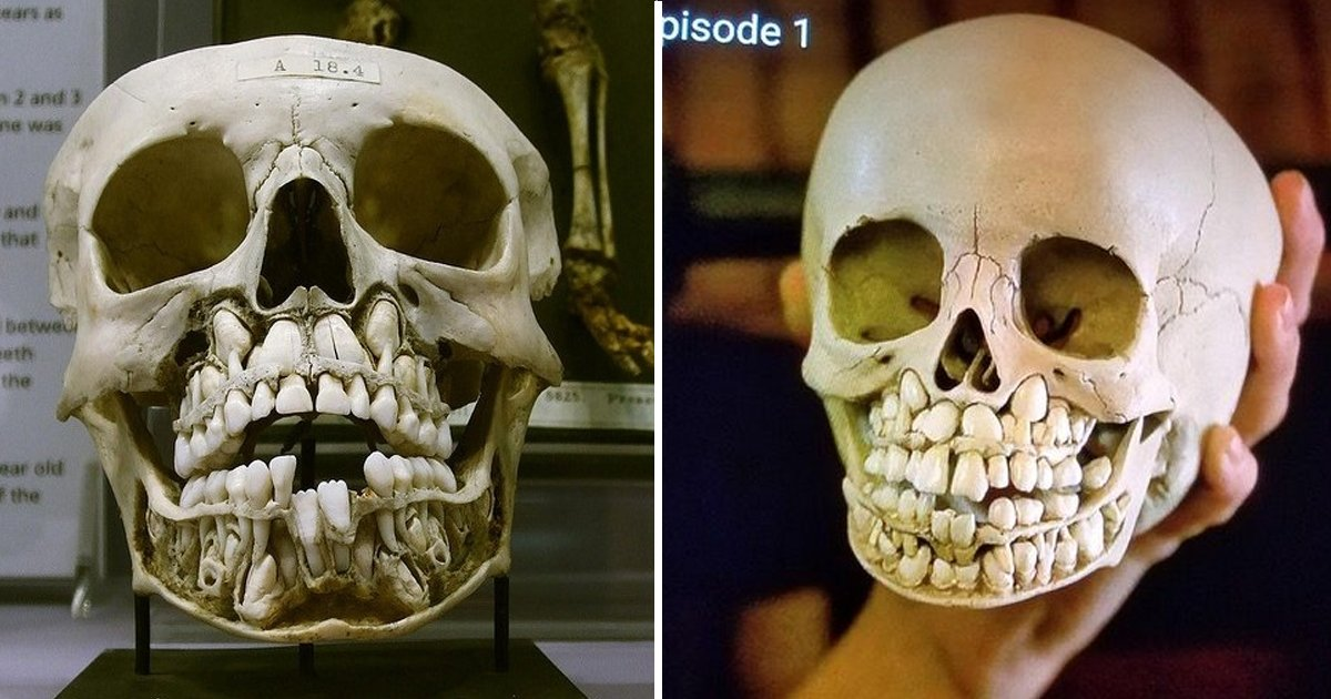 baby skull.jpg?resize=1200,630 - These Photos Of A Child's Skull Full Of Teeth Will Absolutely Cringe You