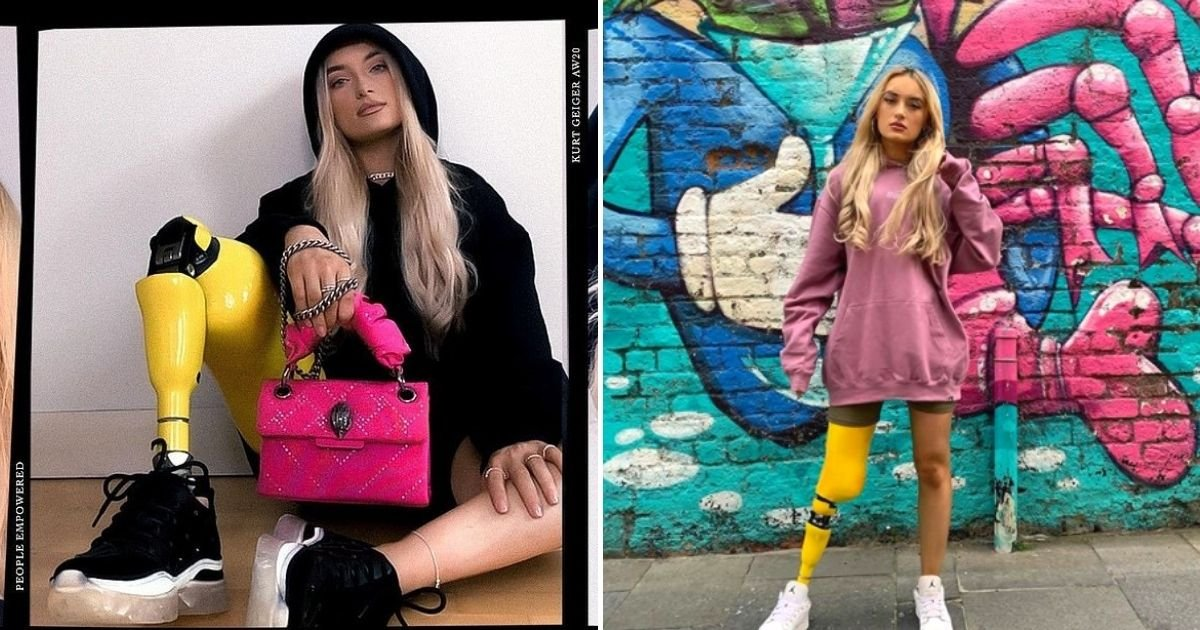 bernadette5.jpg?resize=1200,630 - 24-Year-Old Woman Who Lost Her Leg To Cancer Is Now The New Face Of A Major Fashion Brand