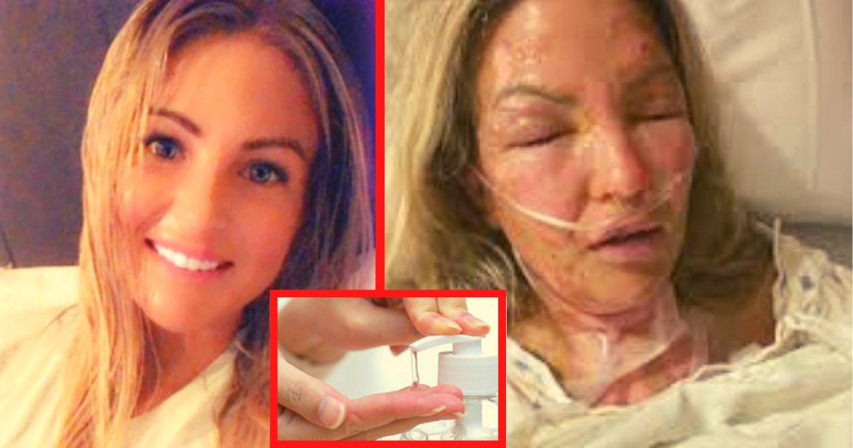 diseno sin titulo 43.png?resize=1200,630 - Chica Sufre Quemaduras Graves Por Encender Una Vela Después De Usar Gel Antibacterial