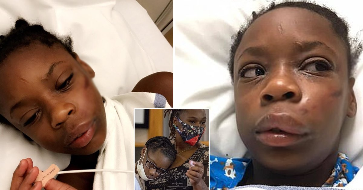 girl attack.jpg?resize=1200,630 - Racist Attack Leaves Young Black Girl Hospitalized After Being Slammed With Metal Pole