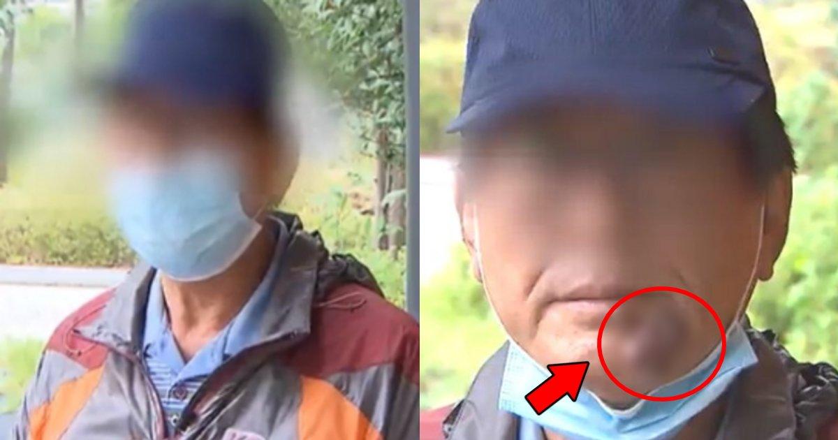 hokuro.png?resize=412,232 - 60代で警備員として就職も顔の大きなホクロのせいで3日でクビになった男性の悲劇…