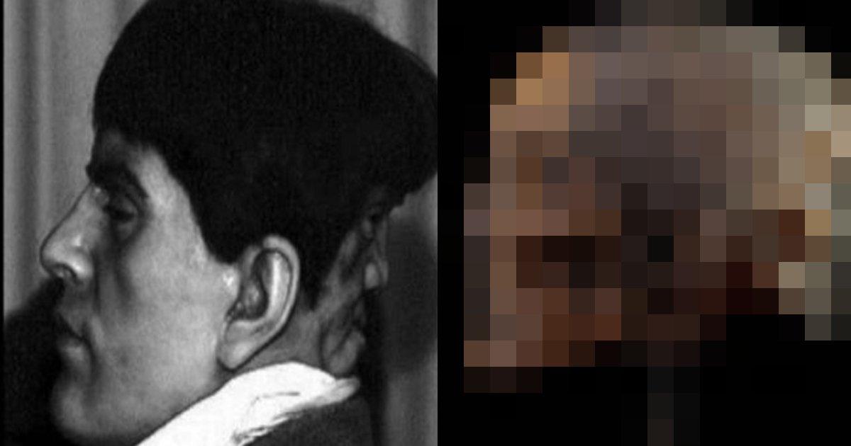 hutago hushigi.png?resize=412,232 - 後頭部の「双子」のせいで自ら命を絶つしかなかった男性の秘密