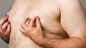 twisted nipples