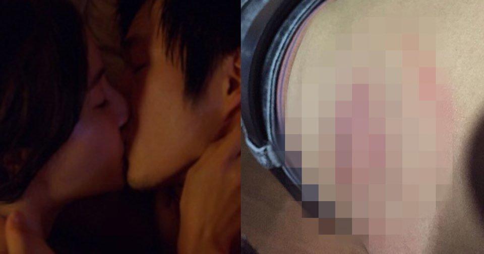 "kakaotalk image 2020 09 28 13 21 27.jpeg?resize=412,275 - ""여자친구가 제 몸에 키스마크를 남겼는데…""… 여자친구와 뜨밤 보내고 몸에 이상하게 자국 생겨 사진 공개한 남성들"