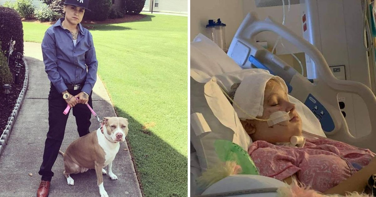 sdfsdfsdss.jpg?resize=1200,630 - Vicious Pit Bull Attack Lands Teen In Coma With Torn Open Scalp. Damaged Throat, And Ear
