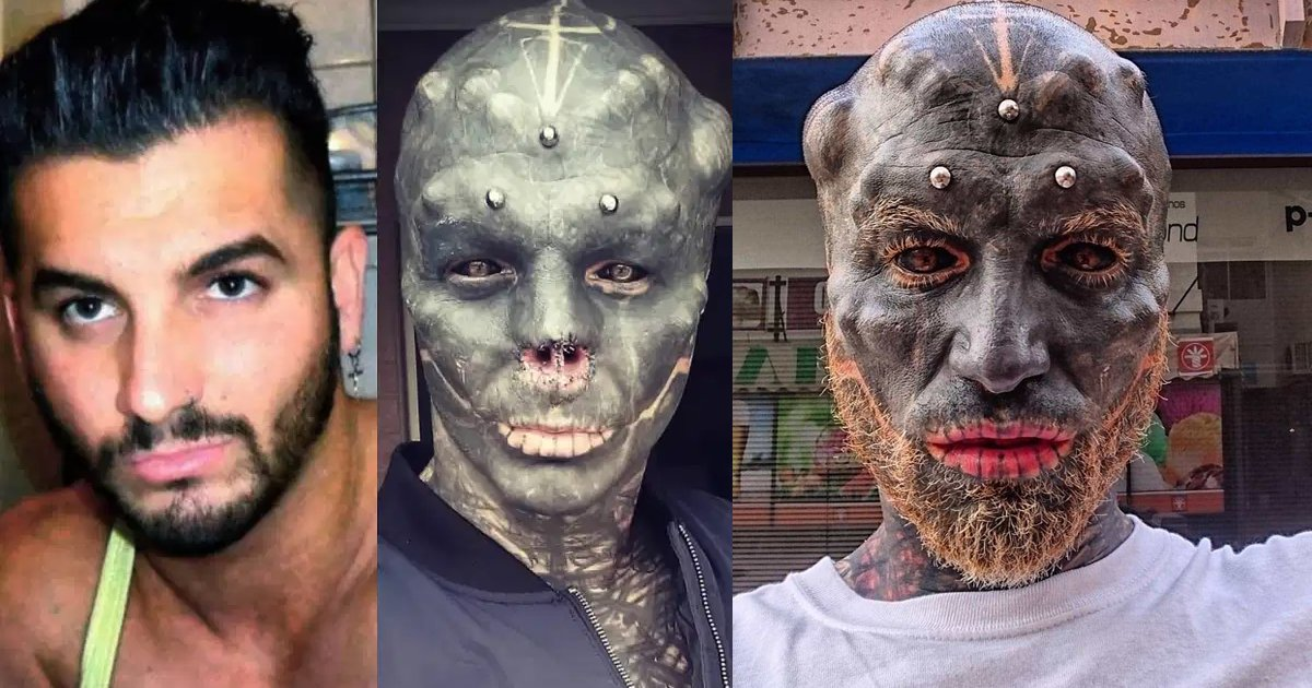 ssdfsdf.jpg?resize=412,232 - Man Gets His Nose Removed As He Transforms Himself Into 'Black Alien'
