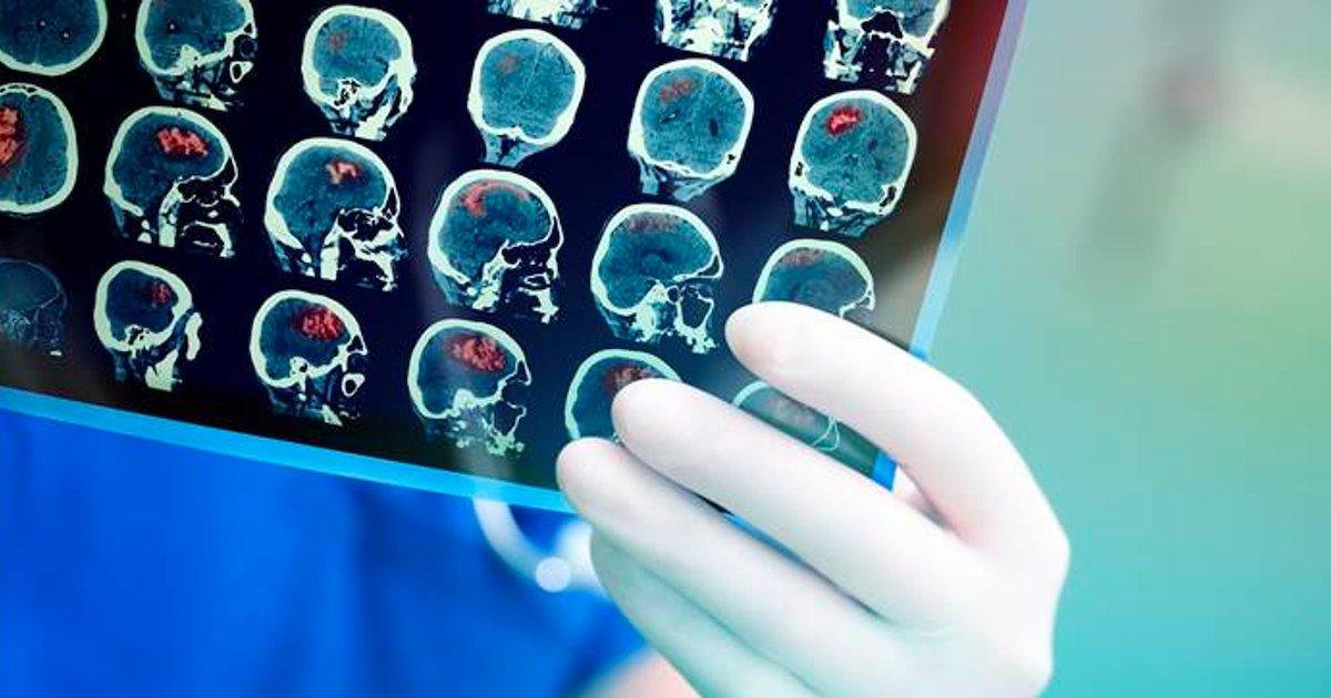 tumeur cerveau.png?resize=412,232 - Une femme a récolté plus de 70 000 euros en ligne pour faire retirer sa tumeur au cerveau