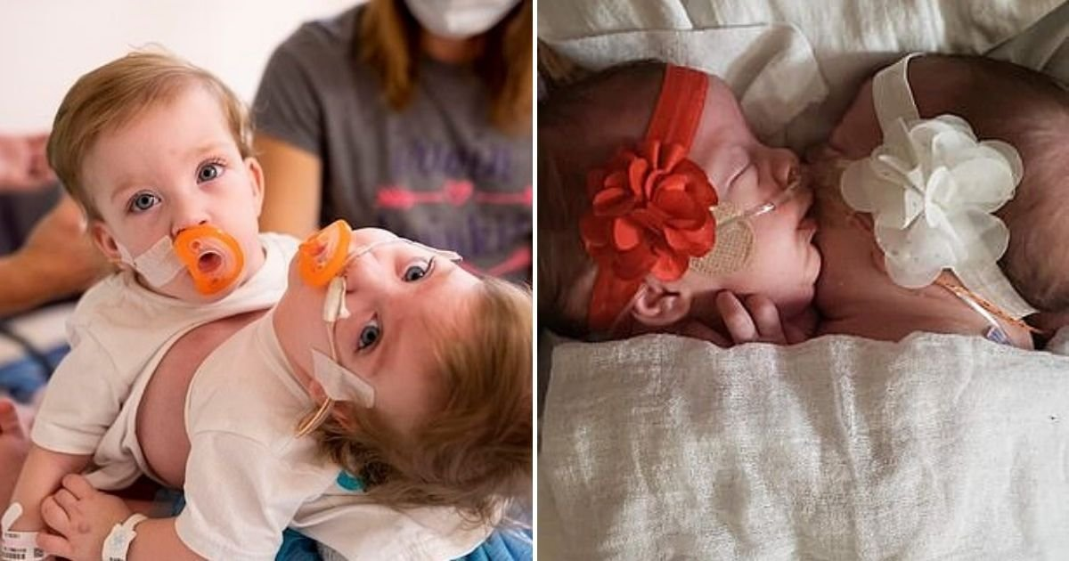 twins6.jpg?resize=412,232 - Conjoined Twins Born Hugging Each Other Are Successfully Separated After 11-Hour Surgery