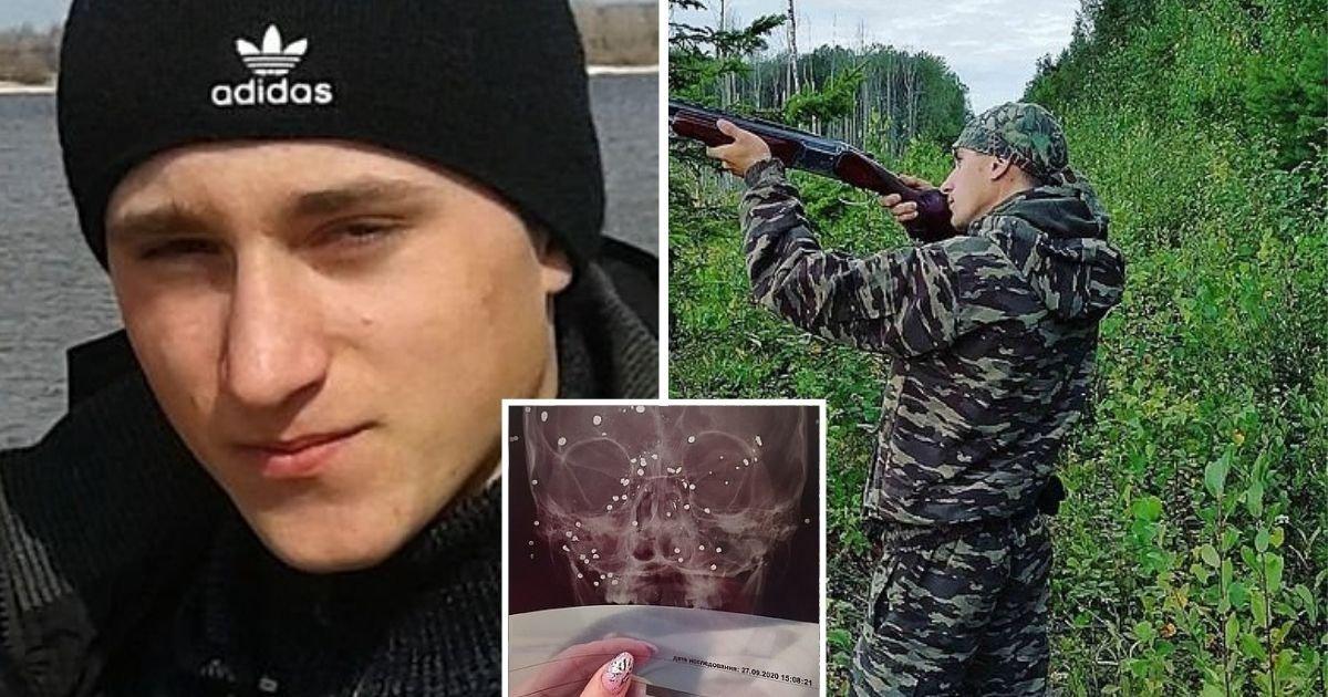 1 11.jpg?resize=1200,630 - Cazador Recibió Un Disparo En La Cara Cuando Su Amigo Lo Confundió Con Un Pato