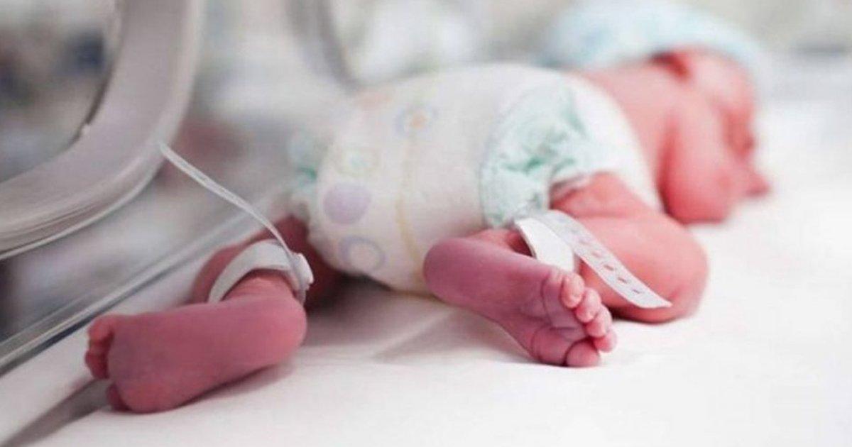 1 130.jpg?resize=1200,630 - Bebé Sin Rostro, Que Nació Sin Ojos, Nariz Y Parte Del Cráneo, Logró Sobrevivir Al 1er Año De Vida