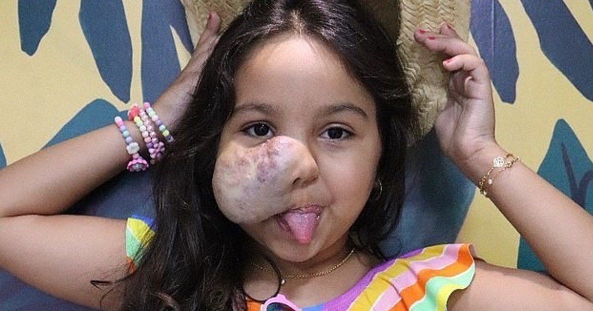 e18486e185aee1848ce185a6 63 1.jpg?resize=412,275 - 6-Year-Old Girl Born With A Large Facial Tumor Refuses To Look In A Mirror