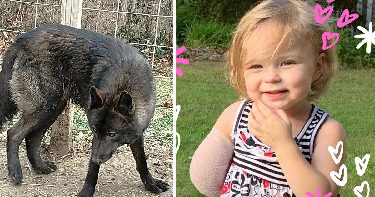 hssgs.jpg?resize=412,232 - Dog Violently Rips Off 2-Year-Old Girl's Arm After She Tried To Reach For Him In Michigan