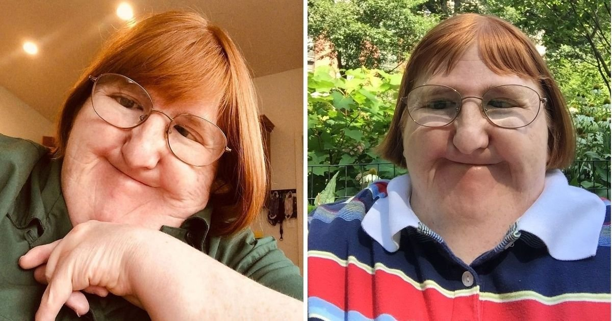 melissa6.jpg?resize=1200,630 - Woman Who Was Told She Is 'Too Ugly' To Share Pictures Of Herself Responded By Posting A Selfie Every Day
