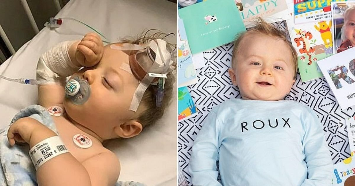 owen6.jpg?resize=1200,630 - Baby Who Underwent 10 Operations And Survived A Giant Brain Tumor Celebrates His First Birthday