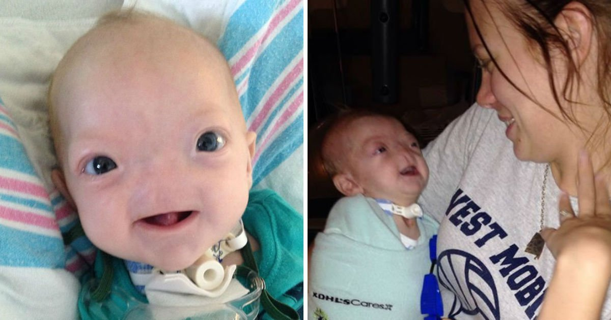 1 91.jpg?resize=1200,630 - Bebé Nació Sin Nariz ¡Pero Tiene Un Corazón Fuerte Y Una Sonrisa Hermosa Que Ha Enamorado A Todos!