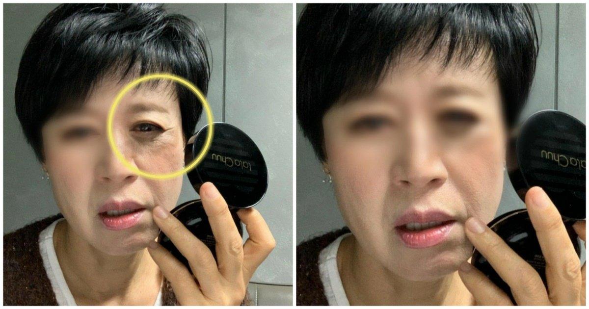 """10 1.jpg?resize=1200,630 - """"얼굴에 이게 무슨 일?""""... 누리꾼들을 놀라게 한 박미선의 '충격적인' 사진.jpg"""
