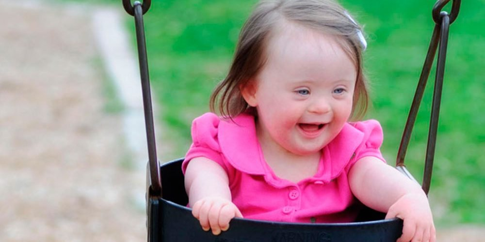 Existen grados en el síndrome de Down? – El Cisne