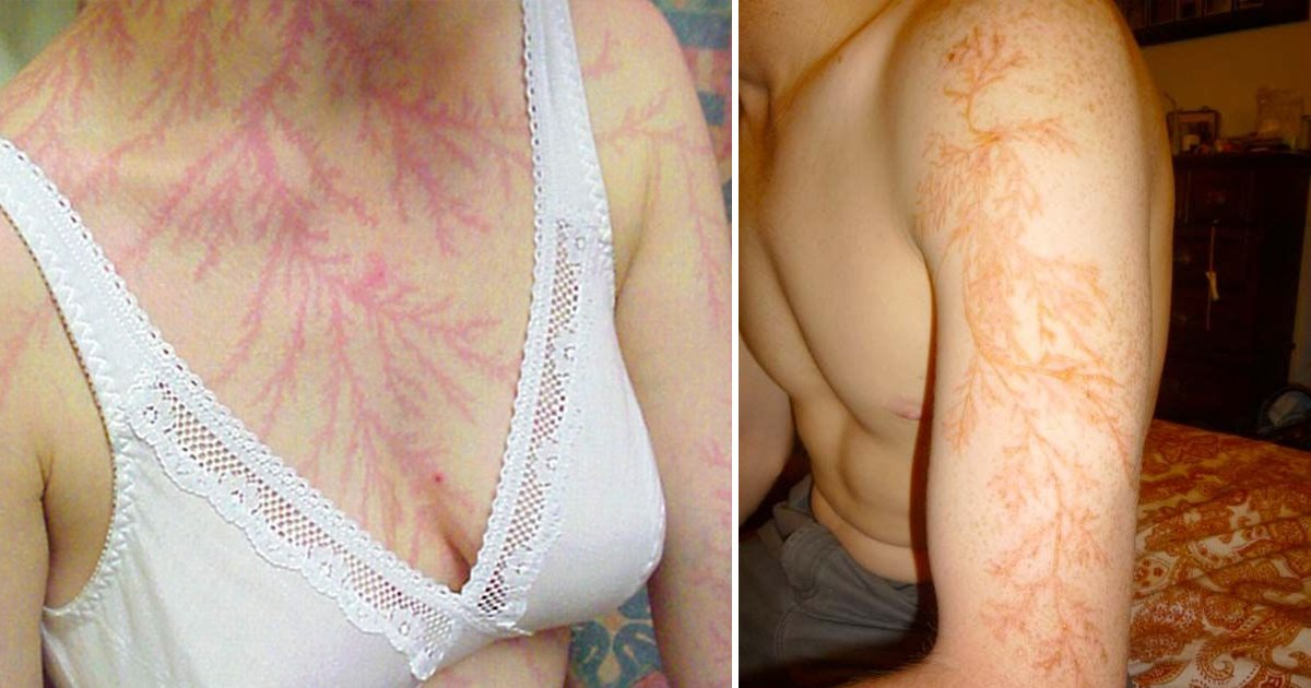 agagsaa.jpg?resize=1200,630 - These Lightning Scars Explain What The Natural Disaster Does To Your Skin