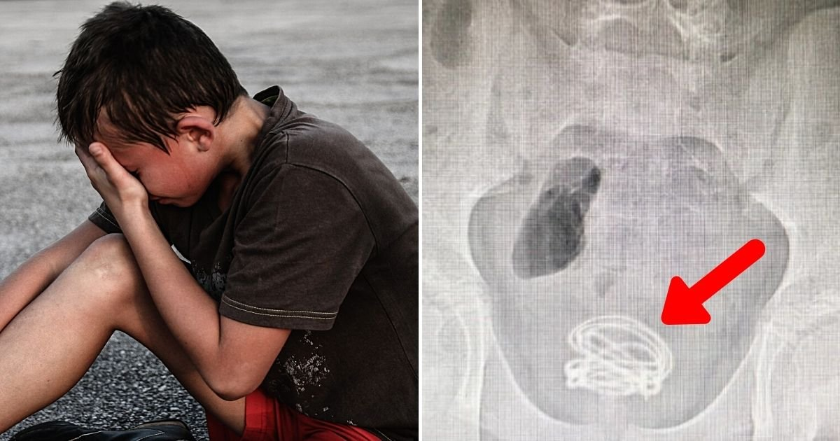 wire5.jpg?resize=1200,630 - 13-Year-Old Boy Has 2Ft Electrical Cable Stuck In His Bladder For Three Months