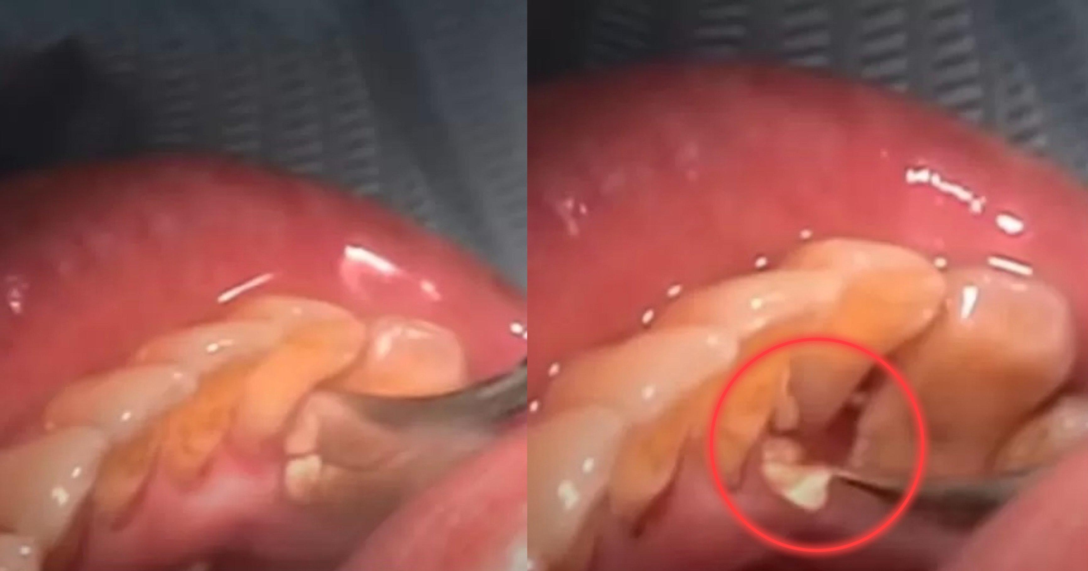 "40b50ef2 fc52 44d9 9cb6 5a045821320a.jpeg?resize=412,232 - ""와 보기만 해도 시원하다""..치과 의사가 직접 공개한 처음으로 '스케일링' 받는 환자의 '치석' 제거 영상"