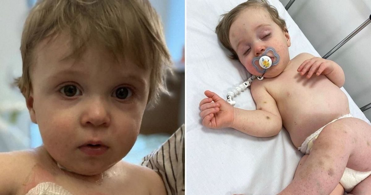 max5.jpg?resize=412,232 - Baby Boy With 'One In A Million' Condition Is Set To Undergo A Life-Saving Transplant