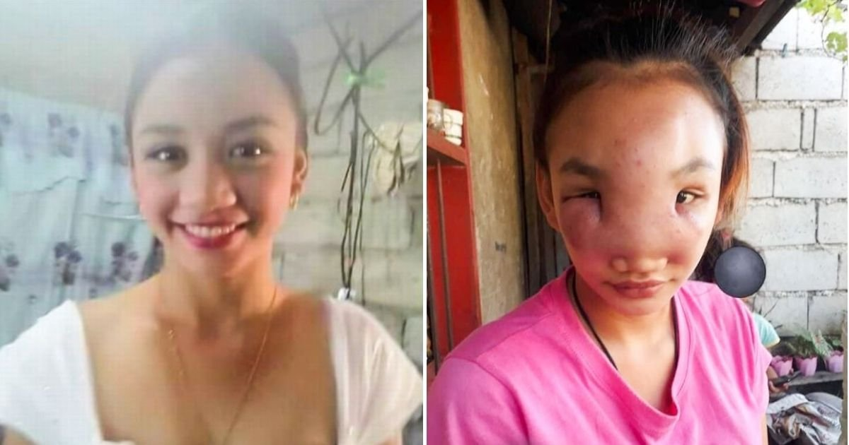pimple5.jpg?resize=1200,630 - 17-Year-Old Girl Nearly Blinded By Mystery Illness After Squeezing A Pimple On Her Nose
