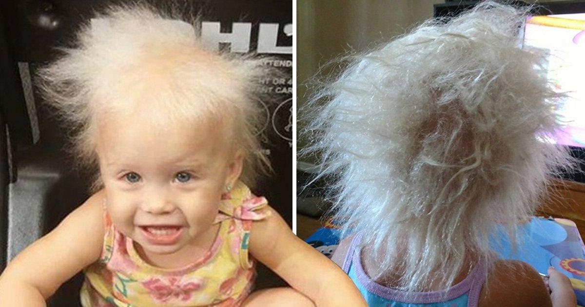 sec 10357906.jpg?resize=412,232 - Une petite fille comparée à Einstein pour ses cheveux incoiffables