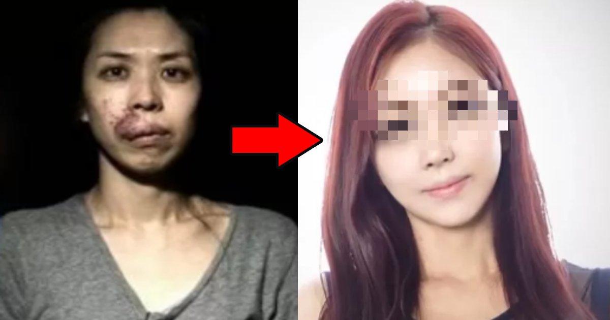 seikei.png?resize=1200,630 - 深刻な顔面の左右非対称で就職さえできなかった女性⇒整形手術で生まれ変わった顔が可愛すぎる!