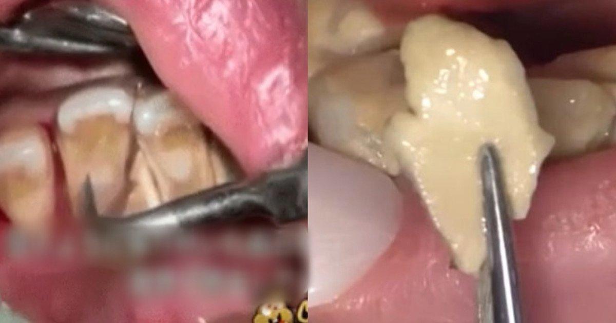 2827d705 4647 4771 b1bc 9fd35ae5dd65.jpeg?resize=1200,630 - 【観覧注意】 歯石除去を先送りしている方、大注目です!「汚いけど…何でだかずっと見ちゃう」、「すっきりしますね!」