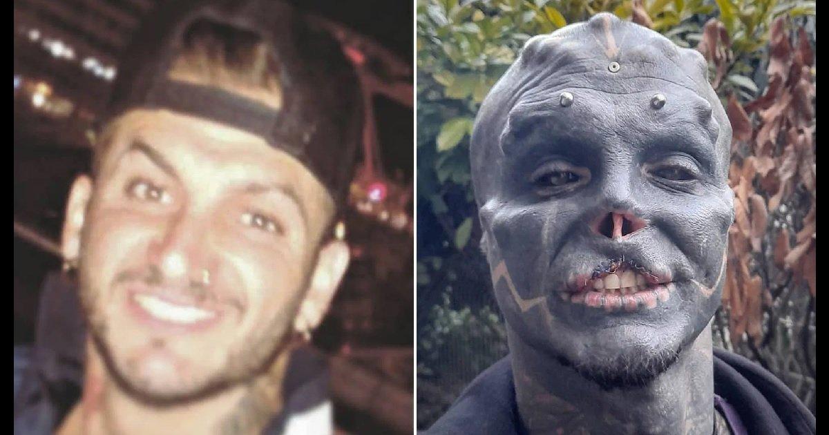"""3 ba.jpg?resize=1200,630 - Le """"Black Alien"""" français poursuit sa métamorphose en s'amputant une partie de son visage"""