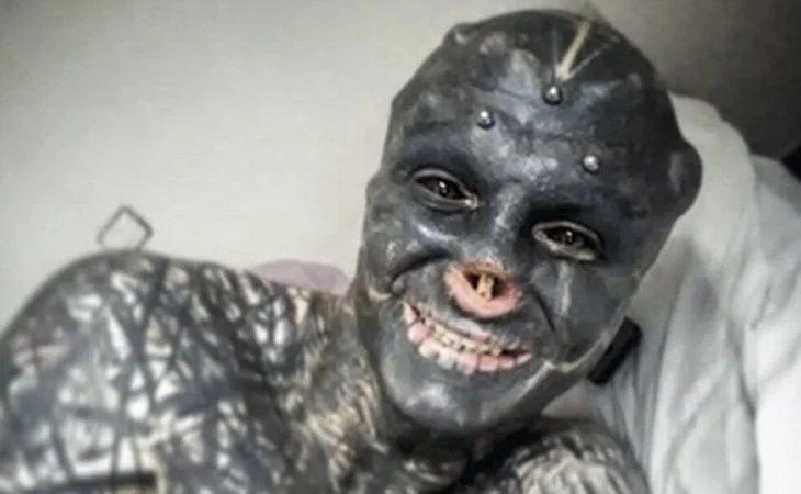 Un hombre se extirpó la nariz, el labio y las orejas para parecerse a un alienígena