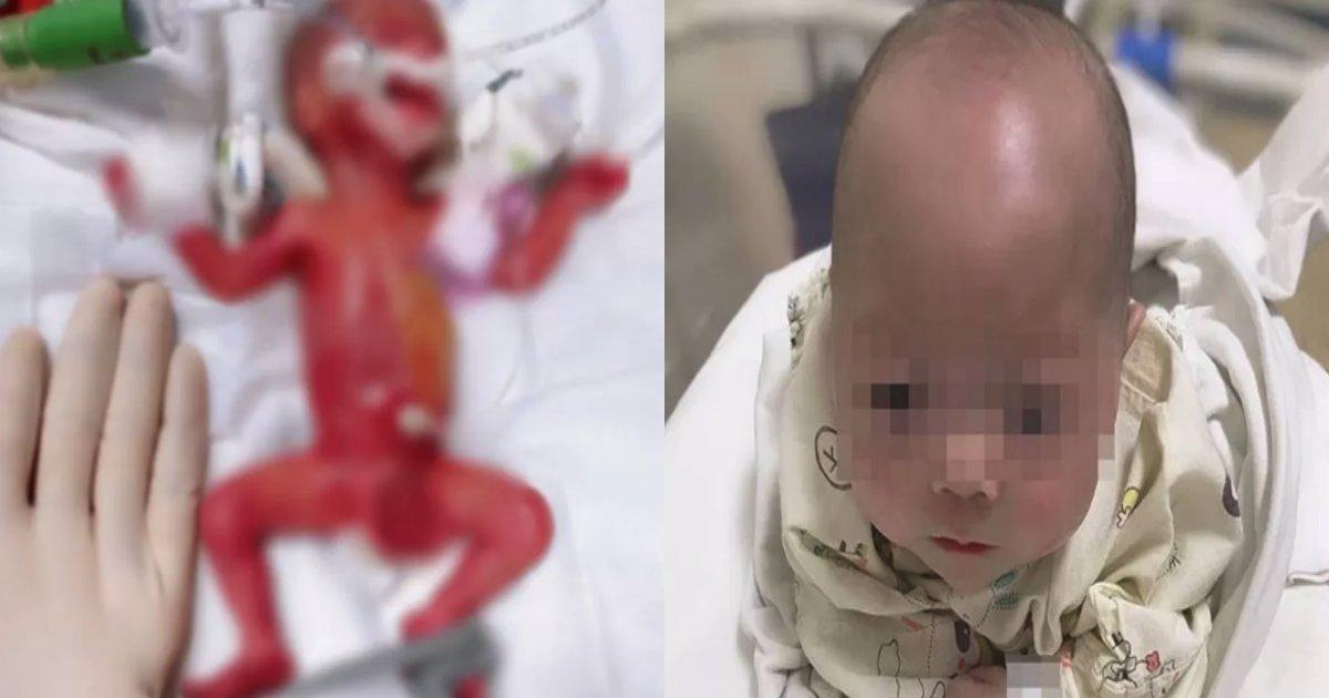 baby doctor.png?resize=1200,630 - 手のひらより小さく生まれた「未熟児」を最後まであきらめずに生かした医療陣