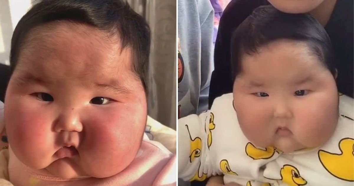 baby5 2.jpg?resize=1200,630 - Mother Left Horrified After Baby's Face Ballooned And Started Growing Hair