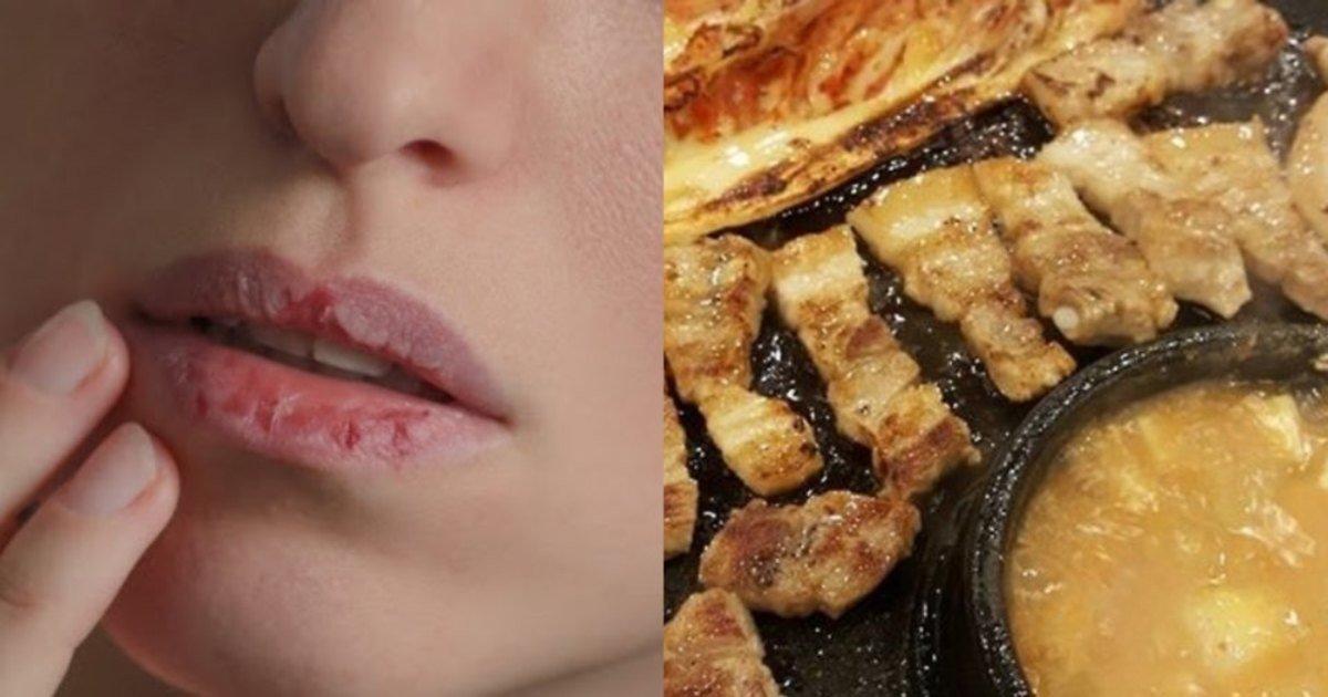 "ec9e85ec88a0 1.jpg?resize=412,232 - ""입술이 너무 잘터""...유독 입술이 건조해지고 잘 터서 고민인 사람들이 꼭 먹어야 할 '이 음식'"