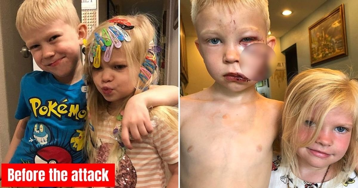 hero8.jpg?resize=412,232 - 6-Year-Old Boy Who Was Mauled By A Dog While Saving His Sister Reveals His Incredible Transformation