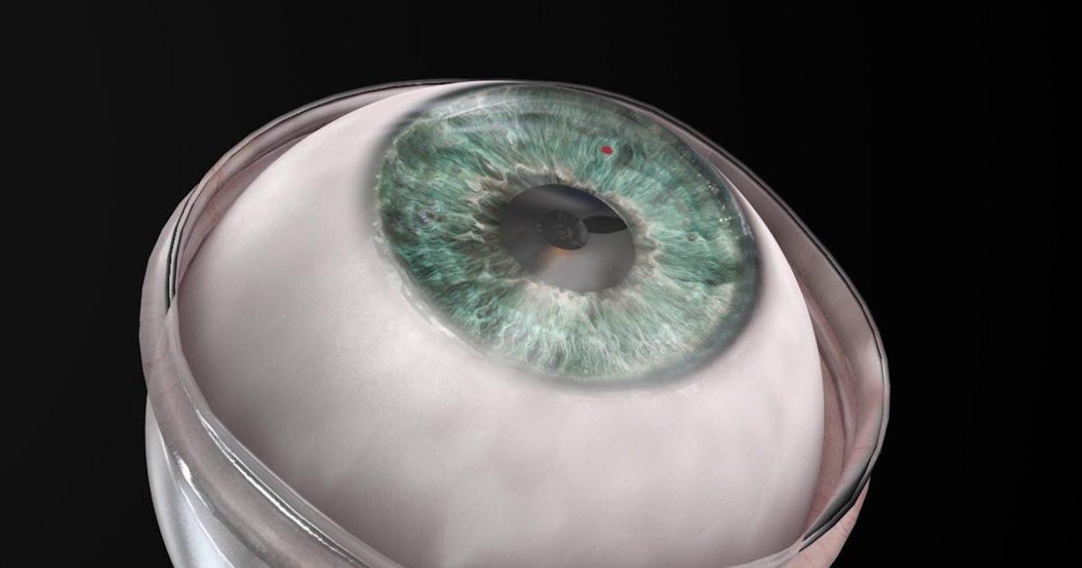 maxresdefault 1 3 e1611595062206.jpg?resize=1200,630 - Un homme de 78 ans a retrouvé la vue grâce à une cornée artificielle