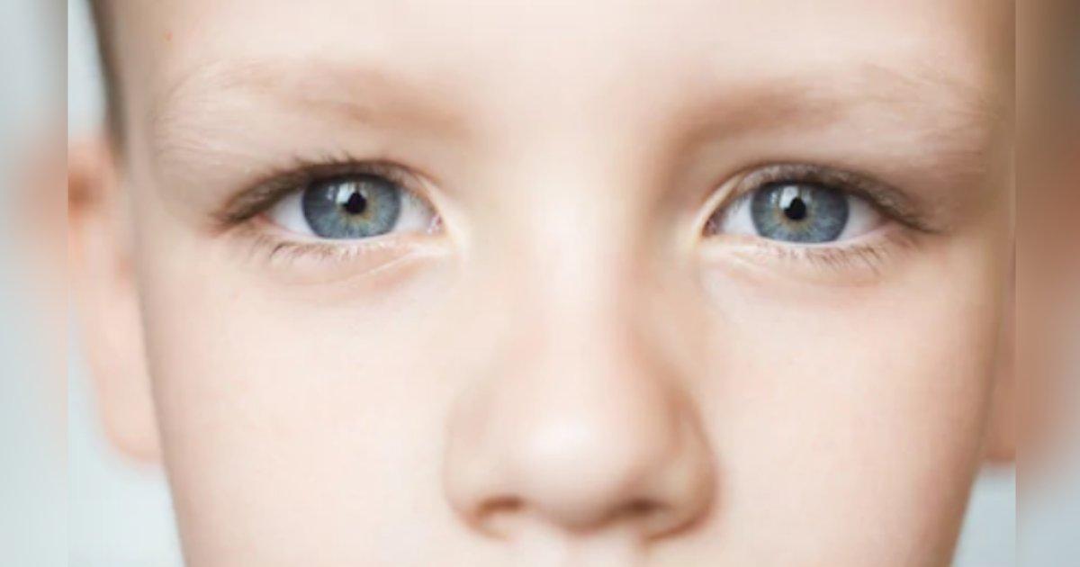 titulo 4 2.png?resize=1200,630 - Nueva Cirugía Láser Permite Cambiar El Color De Los Ojos De Marrón A Azul En Solo 20 Segundos