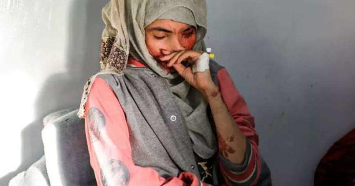 1 110.jpg?resize=1200,630 - Joven Fue Obligada A Casarse A Los 12 Años Y Su Esposo Le Quemó La Cara Con Ácido