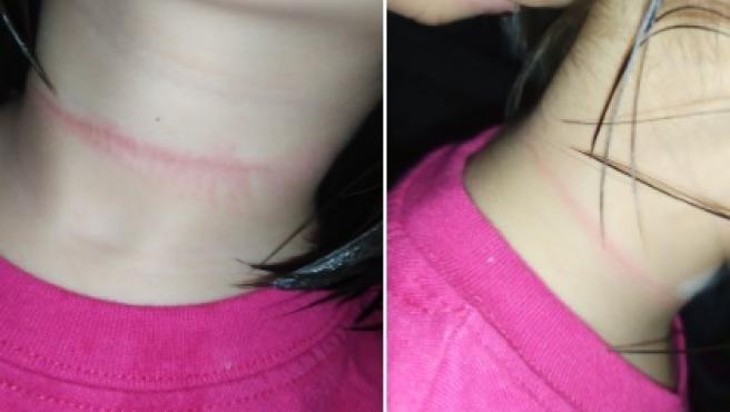 Resultado de imagen de tiktok reto viral soga al cuello italia