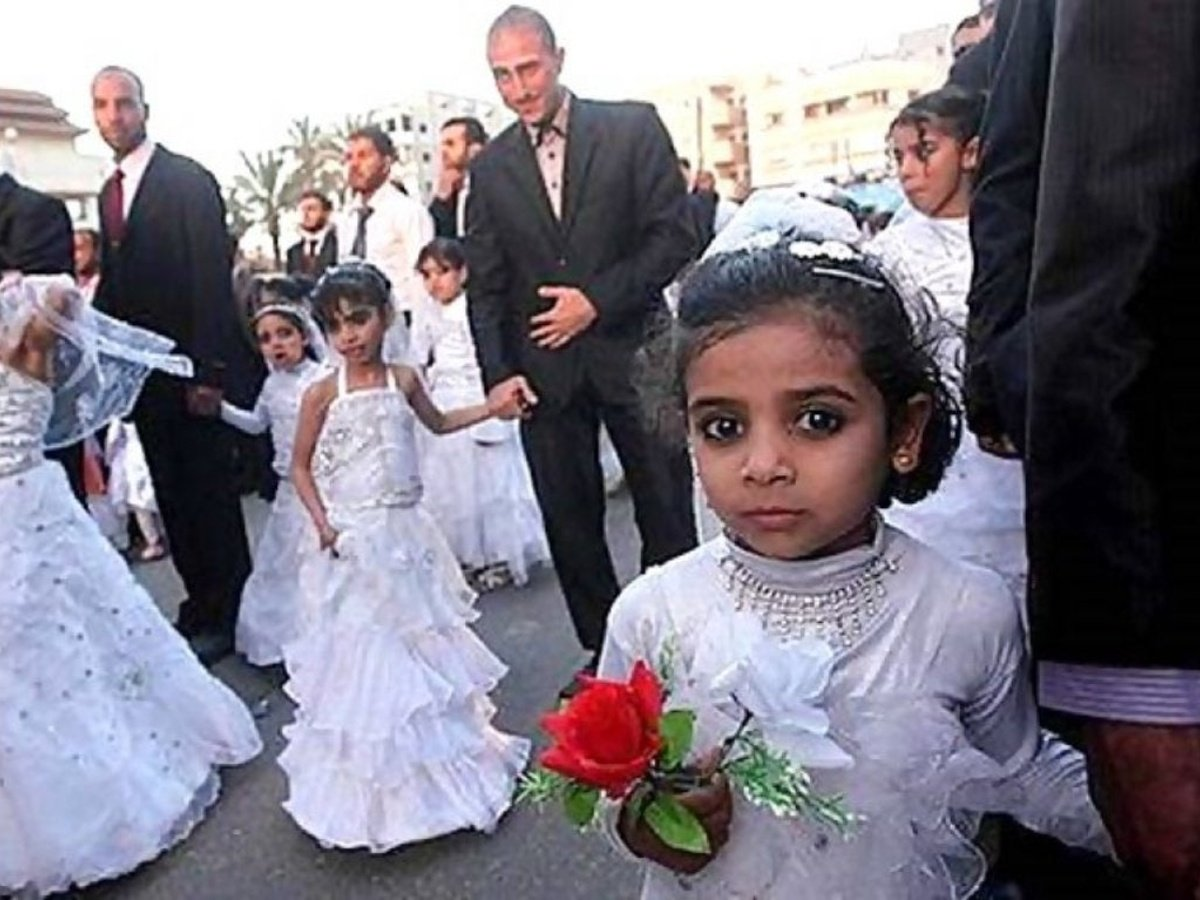 Resultado de imagen de joven yemení es obligada a casarse a los 12 años rostro acido