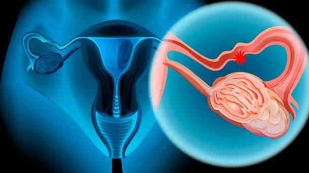 Resultado de imagen de cancer ovario