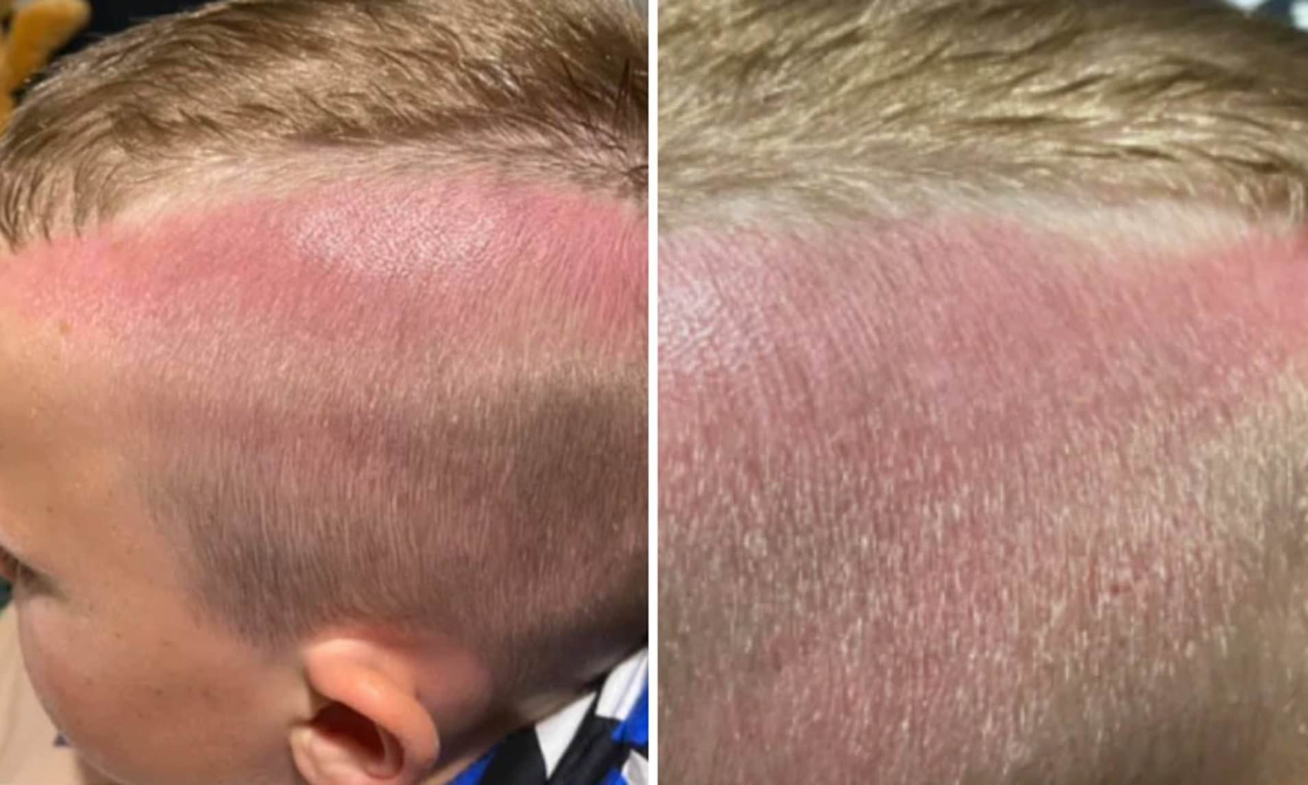serious sunburn