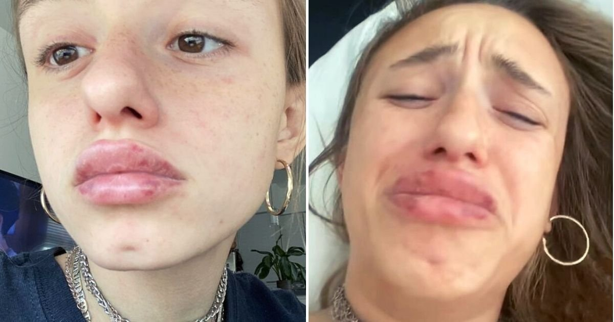 desi6.jpg?resize=1200,630 - Woman Left 'Looking Like A Character From Monsters Inc' After Her Lips Ballooned Because Of Cheap Lip Fillers