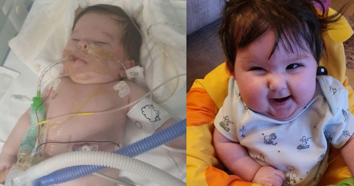ghjf 16.jpg?resize=1200,630 - 'Miracle Baby' Born With A Hole In Her Throat Finally Goes Home With Her Mother